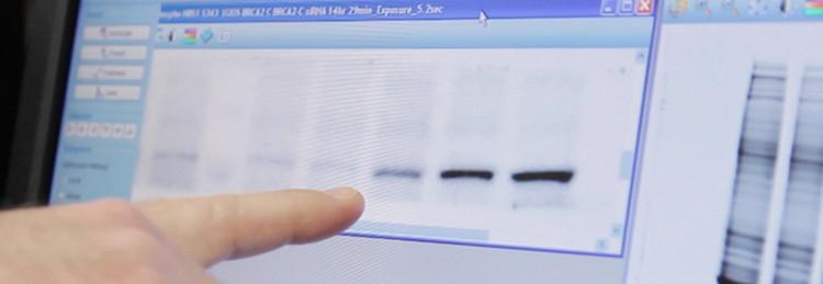 Total protein quantitation using Bio-Rad's ChemiDoc MP imager