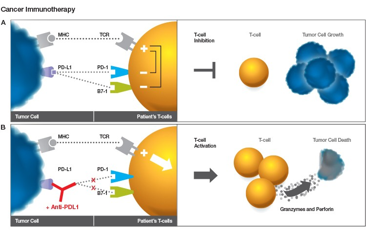 cancer-immunotherapy-image