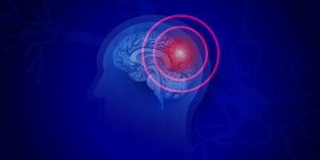 Novel Biomarkers for Traumatic Brain Injury