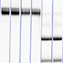 Fig. 3. Gels representing IgG recovery.