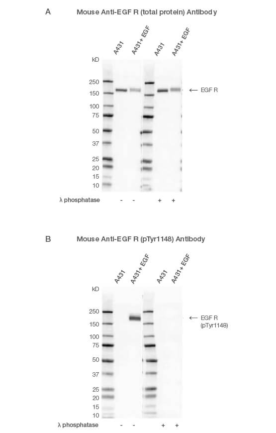 Fig. 1. Western blot analysis of A431-untreated and EGF-treated whole cell lysates probed with (A) Mouse Anti-EGF R Antibody (catalog #VMA00061) or (B) Mouse Anti-EGF R (pTyr1148) Antibody (#VMA00751) followed by detection with HRP-conjugated Goat Anti-Mouse IgG (1:10,000, #STAR207P).